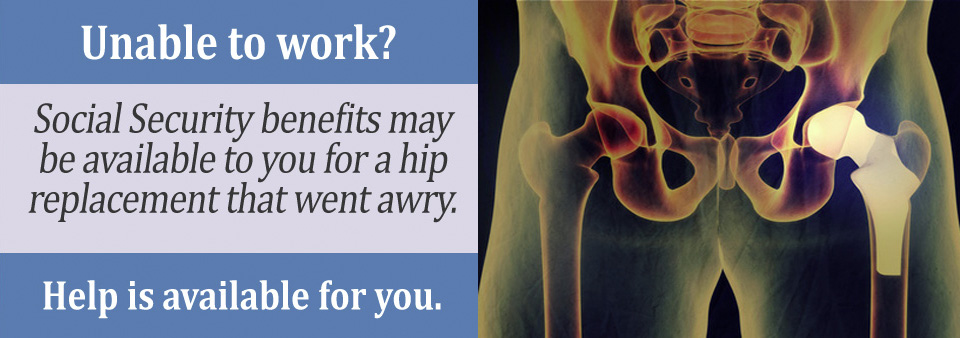 How to Apply for SSD Benefits After Hip Replacement Surgery