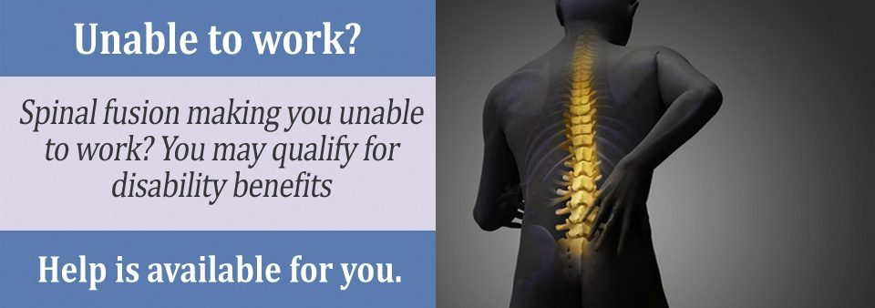 Your Spinal Fusion may qualify you for Social Security disability benefits.