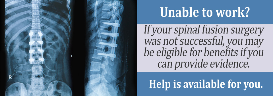 Medical Criteria Needed to Qualify with Spinal Fusion
